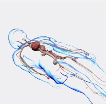L'endoprothèse thoracique