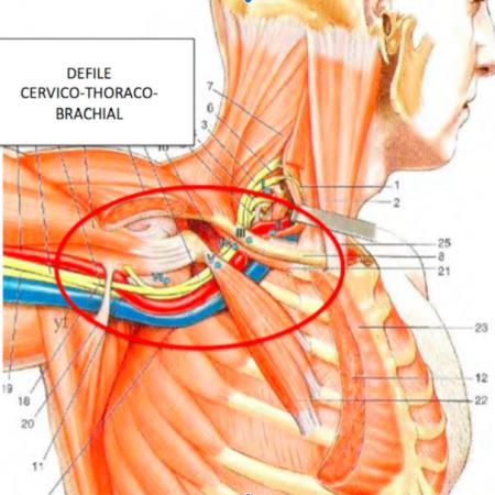 Syndrome du défilé cervico-thoraco-brachial